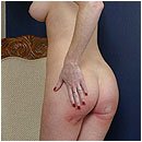 bruised_bottom_jessica_01